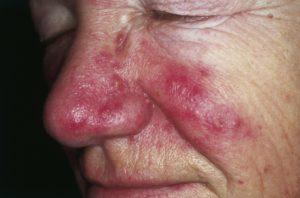 acné rosácea