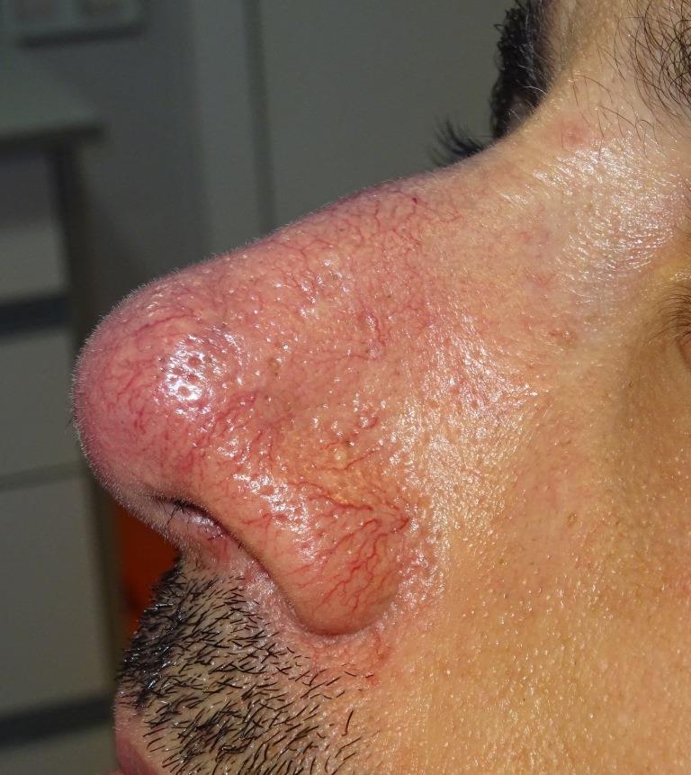 tratamiento couperosis