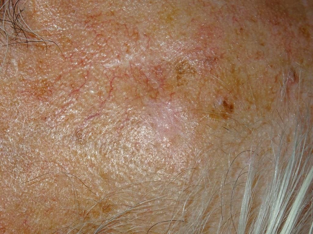 frenar envejecimiento de la piel