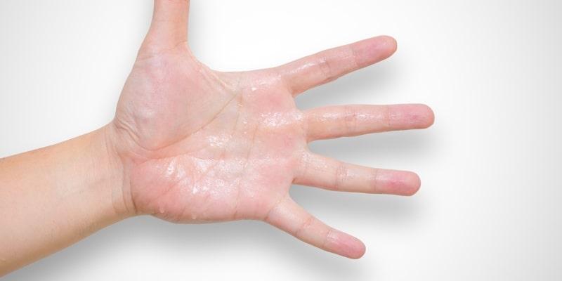 exceso de sudoración tratamiento